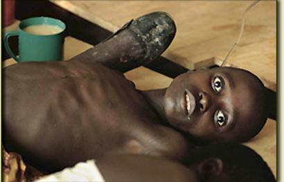 akibat penyakit kolera
