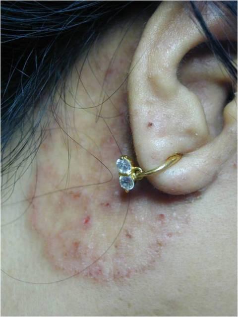 penyakit jamur tinea cruris